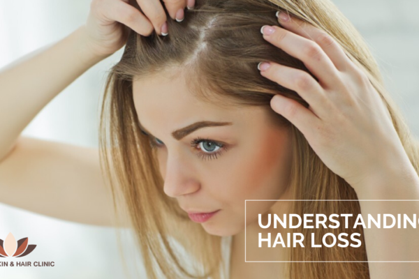 Hair loss is common for women