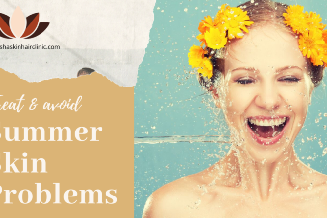 How to Treat and Avoid Summer Skin Problems