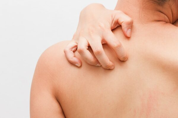 How do you know if you have a skin infection?